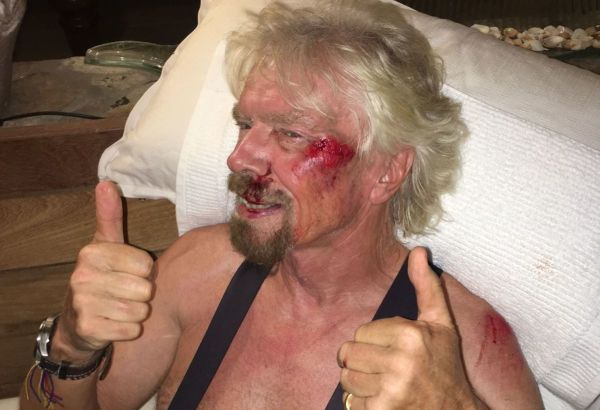 richard-branson-injured-1
